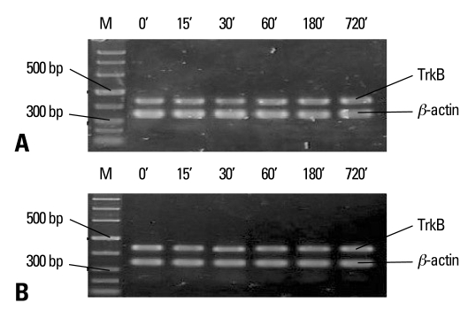 TrkB mRNA expression measured by semiquantitative RT-PCR in the control groups (unstressed, 0 min) and young and aged AS groups after a period of different stress performance. Total RNA was isolated from the hippocampus and assayed for TrkB mRNA at 15, 30, 60, 180, 720 min after stress. (A) Representative electrophoretograms showing the expression of TrkB mRNA in the young control (0 min) and AS groups. (B) TrkB mRNA expression in the aged control and AS groups. The results were calculated as the intensity of the lane of each transcript over the intensity of β-actin (internal standard) band and expressed as the mean ± SEM. n = 5-6 rats per each time point studied. TrkB, tyrosine kinase-coupled receptor; RT-PCR, reverse transcription-polymerase chain reaction; AS, acute stress.