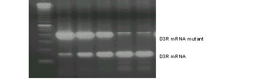 Examples of quantitative RT-PCR of D3R mRNA in one patient. Upper band represents the D3R mutant that competes with D3R cDNA (lower band). This figure shows lane 3 has approximately equal concentrations of D3R and D3R mutant.