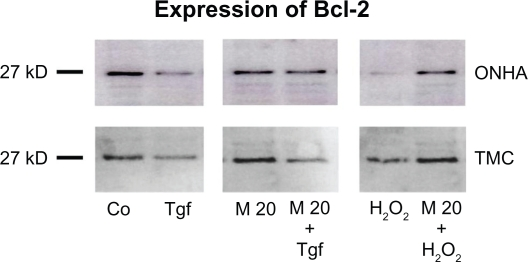 Effect of minocycline treatment on Bcl-2 protein expression. ONHA and TMC were treated with minocycline 20 μM only or additionally with TGFβ-2 (1 ng/mL) or 600 μM H 2 O 2 . Western blotting was used to analyze protein expression in control (Co) and treated cell extracts: TGFβ-2 (Tgf), 20 μM minocycline (M20), minocycline 20 μM and TGFβ-2 (M20+Tgf), 600 μM H 2 O 2 (H 2 O 2 ), and minocycline 20μM and 600 μM H 2 O 2 (M20 + H 2 O 2 ). Ten micrograms of protein was loaded per lane. Abbreviations: TMC, trabecular meshwork cells; ONHA; optic nerve head astrocytes; TGFβ-2, transforming growth factor-beta-2.