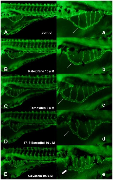 The effects of calycosin, raloxifene and tamoxifen in SIVs of Tg(fli1:EGFP) . (A) Controls: were treated with 0.1% DMSO at 96 hpf, showing no effect on vessel formation (B–E) were treated with 10 µM raloxifene, 3 µM tamoxifen, 10 µM 17-β-Estradiol and 100 µM calycosin at 72 hpf for 24 h. (a–e) Enlarged SIV region (×4.5) of A–E respectively. Abnormal phenotype of blood vessel formation in SIVs was indicated by white arrow, showing slight increase in vessel diameter. Significant increase in vessel diameter was indicated by thick white arrow.