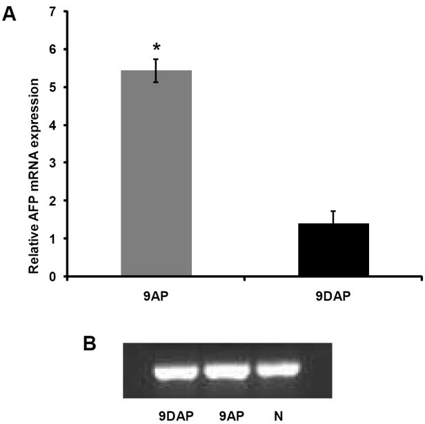 Magnitude of oval cell response quantified by real time <t>PCR</t> analysis of AFP <t>mRNA,</t> relative to normal liver tissue expression and normalized to beta actin (A), 9AP – animals fed normal rat chow and subjected to 2AAF/PH protocol; 9DAP – animals maintained on the L-cysteine diet associated to 2AAF/PH treatment. GAPDH was used as a loading control (B).