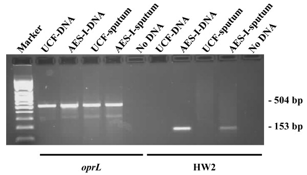PCR detection of oprL and the AES-I HW2 locus from CF sputum . Sputum from 2 patients that had been shown by PFGE screening to contain either AES-I or a unique strain of P. aeruginosa (UCF) was swabbed onto Whatman FTA ® Elute cards. The oprL and HW2 loci were amplified by PCR from these sputum samples (UCF-FTA, AES-I-FTA) or chromosomal DNA (UCF-DNA, AES-I-DNA) purified from the P. aeruginosa strains isolated from the same sputum sample. These strains were also confirmed by PFGE to be AES-I or a unique strain of P. aeruginosa (data not shown).