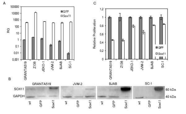 Overexpression of SOX11 decrease proliferation . a) mRNA expression of SOX11 at 24 h after overexpression of the SOX11 gene in six B cell lymphoma cell lines. b) Western blot analysis at 24 h confirms SOX11 overexpression in SOX11 transfected samples (right), compared to wt (left) and control vector (middle), loading control (GAPDH) is seen below c) Proliferation assay at 48 h after transfection showed decreased cell growth in all cell lines but BJAB where the decrease could be seen already after 24 h. In a) all values are relative quantity (RQ) compared to the GFP value for GRANTA 519. In c) all cell lines are compared to their respective GFP value. The data is representative of three independent assays. In a) the error bars show the 95% confidence interval, while in c) ±1SD is shown.