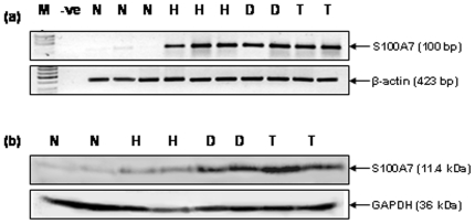Verification of S100A7 expression in tissues. (a) RT-PCR analysis of S100A7 in oral normal mucosa, squamous cell hyperplasia, dysplasia and HNSCC tissues. For RT-PCR analysis and Western blot analysis, we used normal (n = 5), hyperplasia (n = 5), dysplasia (n = 5) and HNSCC (n = 5) tissues. Panel shows increased levels of S100A7 transcripts in oral lesions -squamous cell hyperplasia (H), dysplasia (D) and HNSCC (T) compared with the oral normal mucosa (N) that showed basal levels of S100A7 transcripts. β-actin used as a control to normalize the quantity of RNA used for each RT-PCR reaction is shown in the lower panel. (b) Western blot analysis of S100A7 in oral normal mucosa (N), squamous cell hyperplasia (H), dysplasia (D) and HNSCC tissues. Equal amount of protein lysates from these tissues were electrophoresed on 12% SDS-PAGE and transferred to PVDF membrane. The membrane was incubated with respective primary and secondary antibodies as described in the Methods section and the signal detected by enhanced chemiluminescence method. Panel shows increased expression of S100A7 protein in oral lesions - squamous cell hyperplasia (H), dysplasia (D) and HNSCC (T) compared with oral normal mucosa (N). GAPDH was used as loading control.