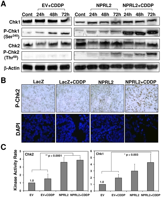Combination of NPRL2 and cisplatin increases the activation of both Chk1 and Chk2. ( A ) H1229 cells treated with empty vector and IC 20 of cisplatin (3.0 µM), NPRL2, or NPRL2+ with IC 20 dose of cisplatin were harvested at 24, 48, and 72 h after treatment and analyzed for expression of Chk1, P-Chk1 (Ser345), Chk2, and P-Chk2 (Thr68). In cells treated with empty vector and IC 20 dose of cisplatin or NPRL2, P-Chk1 increased in a time-dependent manner. In contrast, in those treated with NPRL2 and IC 20 dose of cisplatin, P-Chk1 was dramatically enhanced. Although P-Chk2 was not detected in H1299 cells treated with empty vector and IC 20 dose of cisplatin, it was clearly increased in a time-dependent manner in those treated with NPRL2 or NPRL2+ IC 20 dose of cisplatin. ( B ) P-Chk2 expression was immunohistochemically analyzed in an orthotopic model of H322 pleural dissemination, as described in the Materials and Methods section. P-Chk2 expression was slightly detected in pleural tumor cells from mice treated with NPRL2 nanoparticles, but not in those treated with LacZ or LacZ + cisplatin. In contrast, treatment by NPRL2 nanoparticles and cisplatin induced high phospho-Chk2 expression in tumor cells. Magnification: ×400. ( C ) The kinase activity of Chk1 and Chk2 in H1299 cells treated with empty vector + IC 20 dose of cisplatin, NPRL2 or NPRL2+ IC 20 dose of cisplatin was analyzed with use of a K-LISA Checkpoint Activity Kit, an enzyme-linked immunosorbent assay (ELISA)-based activity assay. Chk1 kinase activity was greater in cells treated with NPRL2+ cisplatin than in cells treated with empty vector or empty vector + cisplatin ( P