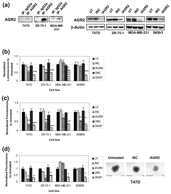 siRNA-mediated AGR2 knockdown affects anchorage-dependent and anchorage-independent growth in breast cancer cell lines . T47 D, ZR-75-1, MDA-MB-231, and SK-BR-3 cells were transfected with negative control siRNA (iNC), AGR2 siRNA (iAGR2), or untransfected (UT). KSP (DKSP) and its corresponding control (DNC) were used as transfection controls. Results are expressed as a ratio of untransfected cells (±SD), n = 3. (a) Detection of endogenous AGR2 in breast cancer cell line supernatants by IP-Western and whole-cell lysates by Western. AGR2 knockdown was confirmed in lysates 72 hours after transfection. β-Actin served as a loading control. (b) The impact of iAGR2 on anchorage-dependent growth was evaluated at 96 hours after transfection by using the Cell Titer Glo assay. Anchorage-independent growth assays were also used: (i) soft agar colony formation assay (c) , with Alamar blue as a readout; (ii) spheroid assay (d) , in which lysed spheroid LDH levels were representative of total cell number after 8 days; corresponding spheroid images were also captured. * P