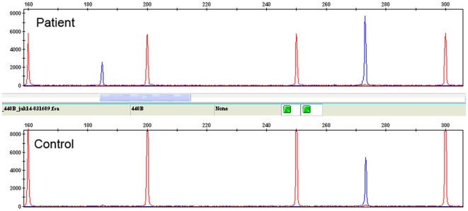 JAK2 Δexon14 transcript as detected using RT-PCR with fragment length analysis. Lower panel: the expected 273-bp, full-length amplification products; upper panel: the expected 273-bp, full-length wild-type peak in addition to a peak at 185 bp corresponding to the truncated Δexon14 transcript. Size marker is shown as red peaks and amplification products are shown in blue.