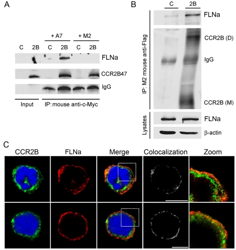 Interaction between CCR2B and FLNa and subcellular distribution of CCR2B with FLNa in monocytes. ( A ) Co-immunoprecipitation of the Myc-tagged CCR2B tail fragment and full length FLNa . Lysates from A7 and M2 cells were added to the in vitro transcription/translated CCR2B-tail (aa 314–360) and anti-c-Myc was used for immunoprecipitation. The translated parental expression vector was used as control (C). IgG levels are indicated in the lower panel. ( B ) Coimmunoprecipitation of full length CCR2B with endogenous FLNa. HEK293 cells were transfected with pcDNA3-FLAG-CCR2B (2B) or pcDNA3-FLAG (C). M2 anti-FLAG antibodies were used for immunoprecipitation. The CCR2B dimer (D) and monomer (M) are indicated. FLNa and β-actin levels in the lysates are shown in the two lower panels. Blots are representative of at least three independent experiments. ( C ) Mono Mac 1 cells ( upper panel ) and THP-1 ( lower panel ) cells were fixed and incubated with anti-CCR2 and donkey anti-rabbit Alexa Fluor 488 and anti-filamin 1 and Texas Red goat anti-mouse. Images are from one single layer of the Z stacks. The colocalization between CCR2B (green) and FLNa (red) was analyzed using Imaris colocalization software and is shown in white. Experiments were done in duplicates and repeated three times.