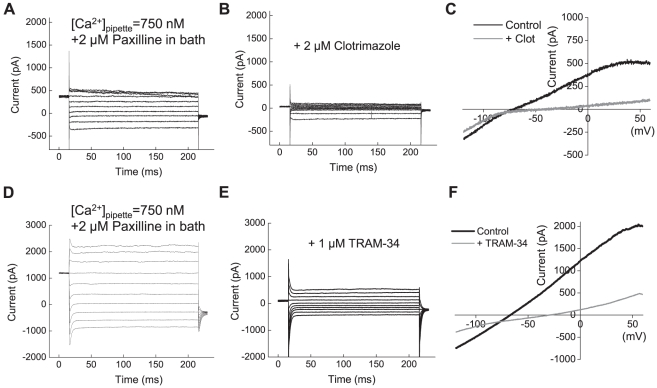 IK1 channels are functionally expressed in U251 glioma cells. ( A ) Representative recordings of the whole-cell IK1 currents elicited by depolarization step pulses from −120 mV to +80 mV in 20 mV intervals. Whole cell IK1 currents were activated by clamping pipette [Ca 2+ ] at 750 nM. To prevent concomitant activation of BK currents, 2 µM paxilline was added into bath solution. ( B ) In the same cell shown in ( A ), the whole cell IK1 currents were inhibited by the potent IK1 blocker clotrimazole (2 µM). ( C ) Whole cell currents in response to depolarization ramps from −120 mV to +80 mV in the absence or presence of clotrimazole. ( D–F ) Results of similar experiments employing the selective IK1 blocker TRAM-34 (1 µM).