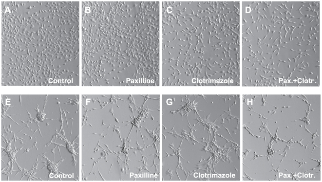 Representative micrographs of U251 (A-D) and U87 (E-H) cells grown in the presence of BK and IK1 blockers. Cells were grown in the serum-free OptiMEM media supplemented with serum substitute B27. The BK blocker paxilline (10 µM) and the IK1 inhibitor clotrimazole (10 µM) were added as indicated. Images of the cells were captured ∼48 hrs after addition of channel blockers using Hoffman modulation contrast optics in Olympus IX71 microscope at 10×10 magnification.