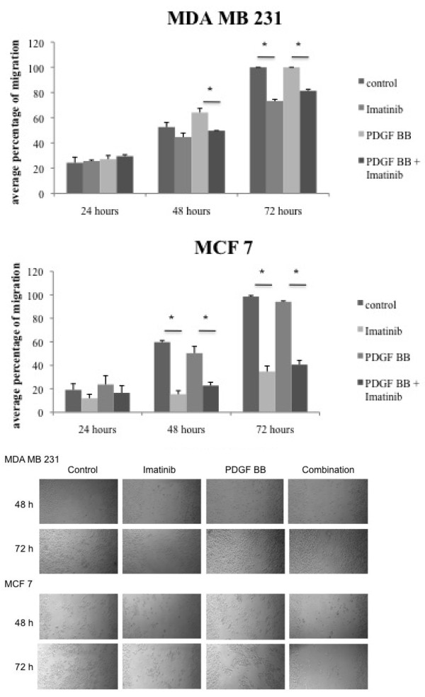 Imatinib inhibits PDGF BB dependent cell migration in breast cancer cells . Migration assays were performed in breast cancer cell lines. Cells were incubated with either imatinib, PDGF BB or their combination for up to 72 hours. Cell migration was measured and student's t-test was performed. * indicates p-values