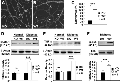 Analysis of retinal inflammation in conditional VEGF KO mice 2 months after inducing diabetes. A and B : FITC-conjugated ConA staining for adherent leukocytes ( arrows ) in retinal microvasculatures of diabetic conditional VEGF KO mice and WT controls. Scale bar represents 100 μm. C : Quantification of adherent leukocytes in retinal vasculatures of diabetic conditional VEGF KO mice and WT controls. D and E : Immunoblotting analysis of ICAM-1 ( D ) and TNF-α ( E ) expression in conditional VEGF KO mice. F : Immunoblotting analysis of NF-κB p65 phosphorylation in diabetic retinas of conditional VEGF KO mice. Error bar: SEM. *** P