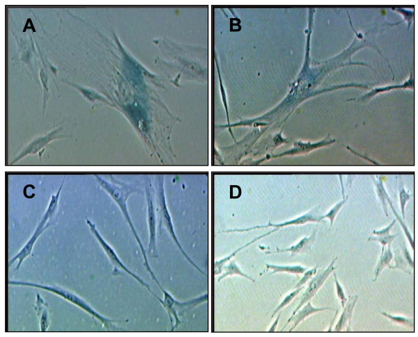 Expression of senescence associated (SA) β-galactosidase with different experimental treatments . Senescent HDFs, passage 30 (A); cells with H 2 O 2 -induced oxidative stress (B); HDFs at young age, passage 4 (C) and γ-tocotrienol-treated HDFs (D). Cells with blue staining indicated positive for β-galactosidase activity. Micrographs are shown at ×200 magnification.