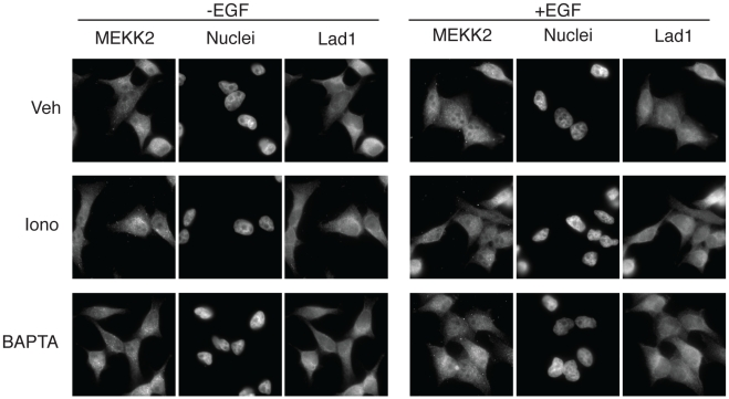 Changes in calcium concentrations do not affect Lad1 localization but inhibit nuclear MEKK2 accumulation. Serum starved HeLa cells were pretreated with vehicle, ionomycin (1 µM) or BAPTA-AM (15 µM) for 15 min and then stimulated with EGF (20 ng/ml) for 10 min. The cells were stained with anti Lad1 or anti MEKK2 Abs and visualized with fluorescent microscopy. This experiment was reproduced 3 times.