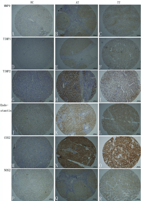Immunohistochemical staining of MMP-9, TIMP-1, TIMP-2, endostatin, COX-2, and NOS-2 in tissues . Representative sections showing immunohistochemical staining of MMP-9 (A, B, and C), TIMP-1 (D, E, and F), TIMP-2 (G, H, and I), endostatin (J, K, and L), COX-2 (M, N, and O), and NOS-2 (P, Q, and R) in healthy controls (A, D, G, J, M, and P), adjacent non-tumor tissues (B, E, H, K, N, and Q) and tumor tissues (C, F, I, L, O, and R). The signals were detected by DAB staining.