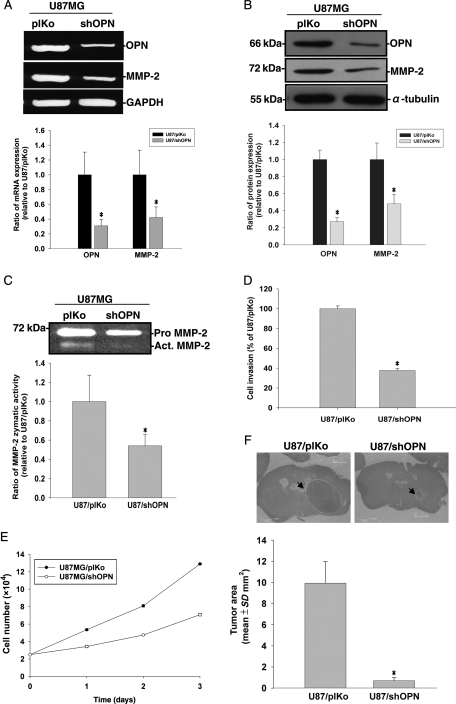 U87MG cells were either stably transfected with an OPN shRNA plasmid or with a plKo shRNA vector as mock control. (A) MMP-2, OPN, and glyceraldehyde-3-phosphate dehydrogenase (GAPDH) mRNA expressions were analyzed by RT–PCR. (B) Cell lysates were harvested and immunoblotted with antibodies specific for OPN, MMP-2, and α-tubulin. These experiments were repeated, and the intensities of bands were quantitated and expressed as ratios to mock control cells. Results shown in the lower panel of (A) and (B) are the mean ± SE of three independent experiments. (C) Media were collected for the zymographic assay of MMP-2 activity. In the lower panel, MMP-2 activity was quantitated by scanning the photographic negatives on a gel analysis system. (D) For the in vitro invasion assay, cells were seeded in equal amounts cells in the upper part of transwell chamber separated by a Matrigel-coated membrane. Migrated cells on the bottom of the membrane were counted. Data represent the mean ± SE of three independent experiments. (E) Cells were seeded in culture plates in DMEM media supplemented with 10% heat-inactivated FCS. Viable cell numbers were counted. Data represent the mean ± SE of three independent experiments. (F) Histopathological characteristics (H E) and tumor volumes of animals implanted with U87/plKo or U87MG/shOPN. Tumor sizes were measured through their largest diameter (upper panel), and the lower panel shows the mean ± SE of three independent experiments. * P