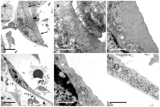 Vitronectin induces ruffled borders and clear zones in osteoclasts. Osteoclasts were incubated for 5 hours in MEM/BSA with M-CSF (50 ng/ml), RANKL (30 ng/ml) and IL-1α (10 ng/ml) in <t>6-well</t> plate wells coated with vitronectin or fibronectin (50 µg/ml), before raising into suspension with a cell scraper and preparation for TEM. A: Osteoclast incubated on vitronectin shows a central area of ruffled border (arrowhead) and a peripheral area free of organelles ('clear zone') (arrows). B, C: higher magnification of center (B) and lower portion (C) respectively of A, showing area of ruffled border (B) and clear zone (C); D–F: Osteoclast incubated on fibronectin shows well-spread appearance, but the undersurface lacked the membrane folds and clear zones seen in osteoclasts incubated on vitronectin. E and F are from central and lower portion of D respectively. Scale bars: A, D: 5 µm; B, C, E, F: 1 µm.