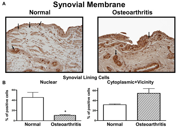 Expression of HMGB1 protein in human synovium . (a) Representative immunohistochemical sections of normal ( n = 3) and osteoarthritic ( n = 3) human synovium with high mobility group box 1 (HMGB1) revealed in 3,3'-diaminobenzidine (DAB). Arrows indicate HMGB1 positive cells. Original magnification × 100. (b) Histograms of normal and osteoarthritic positive cells (%) in the synovial lining cell nucleus and cytoplasm and vicinity. Data are expressed as mean ± standard error of the mean ( n = 3). * P