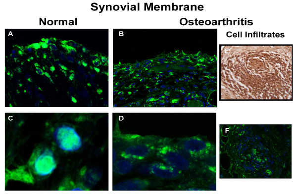 Confocal analysis of HMGB1 expression in human synovium . Representative immunohistochemical sections of human (a, c) normal ( n = 3) and (b, d) osteoarthritic ( n = 3) synovium with high mobility group box 1 (HMGB1) revealed in fluorescence and read with confocal microscopy. (e) represents immunohistochemistry revealed in 3,3'-diaminobenzidine (DAB) of human osteoarthritic synovium infiltrates, and (f) is as (e) but revealed with the fluorescent antibody. The colour green represents HMGB1 and blue the nucleus. Original magnification × 100. (c) and (d) were amplified by the image processor software.