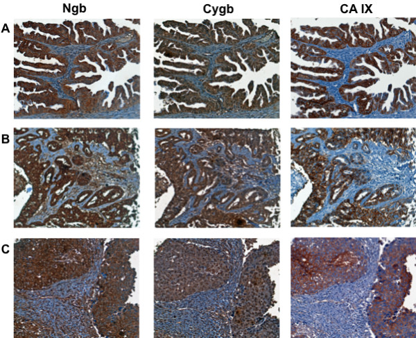 Expression of Ngb, Cygb and CA IX in human tumors . Tissue microarrays containing cores obtained from various human tumors were stained with to antibodies to Ngb, Cygb or CA IX. Positive staining was visualized by the chromogenic reaction of HRP with DAB. Photomicrographs were obtained at 20× magnification, and the scale bar indicates 50 μM. (A) ovarian carcinoma; (B) hepatocellular carcinoma; (C) breast infiltrating duct carcinoma.