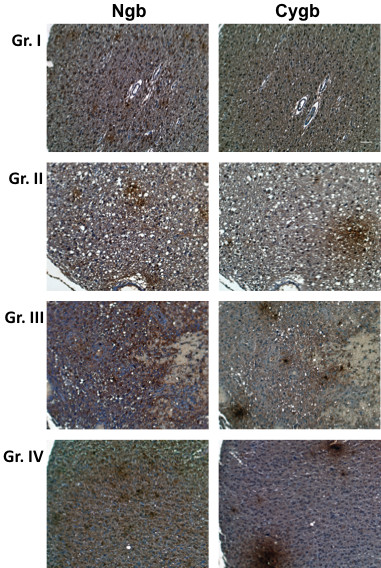 Expression of Ngb and Cygb in human astrocytomas . Tissue microarrays containing cores obtained from various human brain tumors were stained with to antibodies to Ngb or Cygb. Positive staining was visualized by the chromogenic reaction of HRP with DAB. Photomicrographs were obtained at 20× magnification, and the scale bar indicates 50 μM. Sections of representative examples of Grades I-IV astrocytoma are shown.
