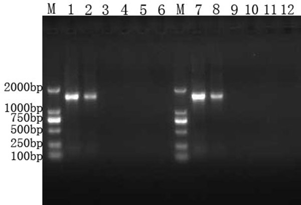 Gel electrophoresis of PCR and RT-PCR products . Lane M, DNA marker; Products amplified from pACYC-MS2-2V are represented in lanes 1-6: lane1, positive control; lane 2, RT-PCR product of RNA extracted from armored RNA; lanes 3-6, the 4 negative controls (H 2 O, H 2 O after extraction and RT, RNA extracted from armored RNAs without RT, and armored RNAs without extraction and RT); lanes 7-12 represent the same treatments, but amplified from pACYC-MS2-IC-2V.