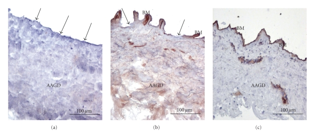 The dermis basement membrane obtained by the three different techniques stained with Collagen IV MoAb. (a) Dispase II, (b) Trypsin, (c) the manual method. Only the manual method left an integral structure. Arrows indicate the absence of basement membrane. Original magnification: 10x. AAGD: alloplastic acellular glycerolized dermis; BM: basement membrane.