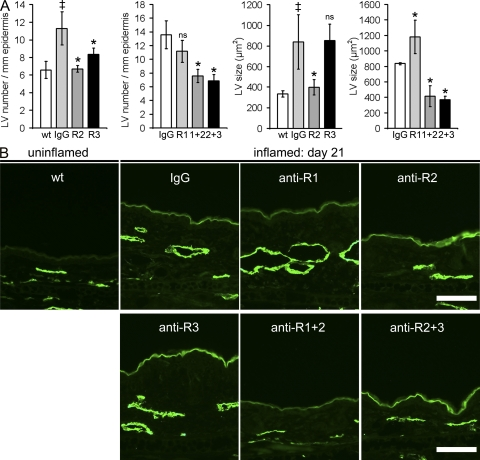 Inflammatory lymphangiogenesis is inhibited by blockade of VEGFR-2 or of VEGFR-3. (A) Quantitative image analyses of lymphatic vessels (LV; LYVE-1 + , green) revealed a significantly increased number and size of lymphatic vessels in control IgG injected mice at day 21 after induction of inflammation, as compared with normal wild-type (wt) mice. The mean number of lymphatic vessels was reduced after anti–VEGFR-2 (R2) and after anti–VEGFR-3 (R3) treatment but not after systemic inhibition of VEGFR-1 (R1). Combined inhibition of VEGFR-1+2 (1+2) or VEGFR-2+3 (2+3) also reduced lymphatic vessel numbers. Systemic inhibition of VEGFR-2, VEGFR-1+2, and VEGFR-2+3 resulted in a reduced mean size of lymphatic vessels. n = 5 mice per group. Two independent experiments were performed. Data represent mean ± SD. ‡, P