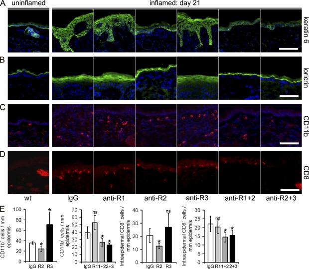 Systemic blockade of VEGFR-2 results in normalized epidermal differentiation and reduced inflammatory skin infiltration. (A and B) Immunofluorescence analyses of ear skin sections from normal wild-type mice show that the hyperproliferation-associated keratin 6 is only faintly expressed in the normal interfollicular epidermis and is largely restricted to the hair follicle (A). Loricrin, a marker of terminal epidermal differentiation, is restricted to the upper granular layer in normal mouse skin (B). At day 21 of chronic skin inflammation in control IgG-treated mice, keratin 6 and loricrin show a much broader expression pattern. Inhibition of VEGFR-2 (anti-R2), alone or in combination with inhibition of VEGFR-1 or VEGFR-3, largely normalized keratin 6 and loricrin expression patterns. Treatment with anti–VEGFR-1 or anti–VEGR-3 showed no major effect. (C and E) CD11b + cells are rarely found in normal mouse skin (wt). The number of CD11b + cells was increased in the inflamed skin of control IgG-treated mice and was decreased after the inhibition of VEGFR-2, VEGFR-1+2, or VEGFR-2+3 but not after inhibition of VEGFR-1. Inhibition of VEGFR-3 resulted in enhanced numbers of CD11b + cells. (D and E) Inhibition of VEGFR-2, VEGFR-1+2, and VEGFR-2+3 strongly decreased the number of intraepidermal CD8 + T-lymphocytes, whereas the inhibition of VEGFR-1 or VEGFR-3 had no effect, as compared with IgG-treated mice. Bars, 100 µm. (E) Computer-assisted quantification of the numbers of CD11b + and CD8 + cells per millimeter of epidermal basement membrane. n = 5 mice per group. Two independent experiments were performed. Data represent mean ± SD. *, P