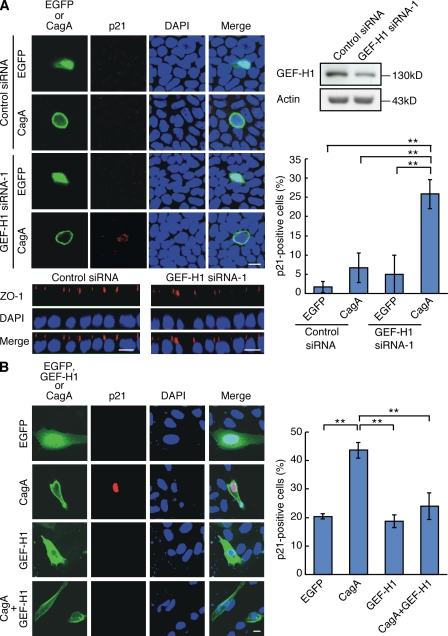 Requirement of GEF-H1 for the inhibition of CagA-mediated p21 accumulation in polarized epithelial cells. (A, left) Polarized MDCK cells treated with 100 pmol GEF-H1 siRNA-1 or firefly luciferase–specific siRNA (control siRNA) were transfected with CagA or EGFP expression vector. Cells were stained with anti-p21 antibody (red, top, confocal x-y view) or anti–ZO-1 antibody (bottom, confocal x-z view). Bars, 10 µm. (A, right) Cell lysates were subjected to immunoblotting (top). Percentage of p21-positive cells in GEF-H1 knockdown MDCK cells expressing CagA or EGFP. Error bars indicate mean ± SD. n = 3. **, P