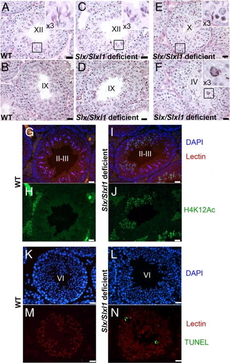 Impaired spermiogenesis and increased apoptosis of elongating spermatids in Slx/Slxl1 -deficient mice. (A–D) In PAS-stained stage XII testis tubules of Slx/Slxl1 -deficient (shSLX1 transgenic) mice, elongating spermatids are less developed than in controls (A). Typically, elongating spermatids with morphology of step 10 spermatids were observed in step XII tubules (C). In PAS-stained stage IX testis tubules of Slx/Slxl1 -deficient mice (D) mature sperm are retained in stage IX tubules, whereas in WT testes (B) mature sperm have already been released into the lumen. (E) PAS-stained stage X Slx/Slxl1 -deficient testis tubule. Several mature sperm are retained near the basal lamina (enlargement, right top corner). (F) PAS-stained stage IV Slx/Slxl1 -deficient testis tubule. A typical group of dying sperm organized in circle can be observed (enlargement, right top corner). (G–J) stage II-III testis tubules of Slx/Slxl1 -deficient mice present a great number of delayed elongating spermatids (marked with H4K12Ac antibody in green). Same stage tubules of control mice do not show any remaining H4K12Ac signal in spermatids. (K–M) Detection of apoptosis (TUNEL) in WT and Slx/Slxl1 -deficient testes. Representative pictures show the presence of several apoptotic elongating spermatids (in green) in a stage VI testis tubule of a Slx/Slxl1 -deficient male. No or very few apoptotic cells can be observed in a control testis (shSLX nontransgenic sibling). DAPI (in blue) was used to stain nuclei, and Lectin (in red) was used to stage the seminiferous tubules. Scale bar, 20 μm.