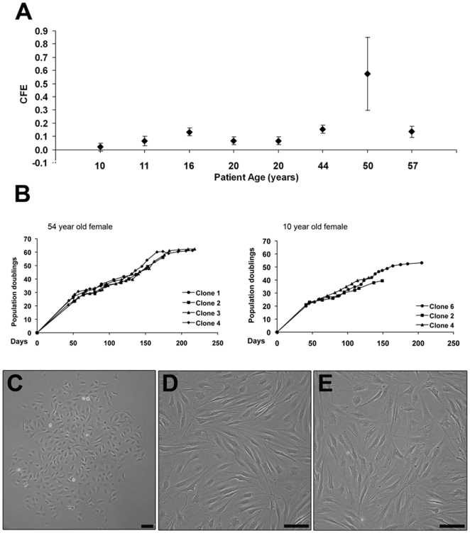 Population data from clonal cell lines. Colony forming efficiency calculated from 8 samples that were subjected to the fibronectin adhesion assay (as described in Materials Methods ) (A). Population doublings data from 2 representative samples demonstrating proliferative rate of the clonal cell lines during a period of over 200 days (B). Phase contrast microscopic appearance of a representative fibronectin adhered colony (C) and clonal monolayers at low (