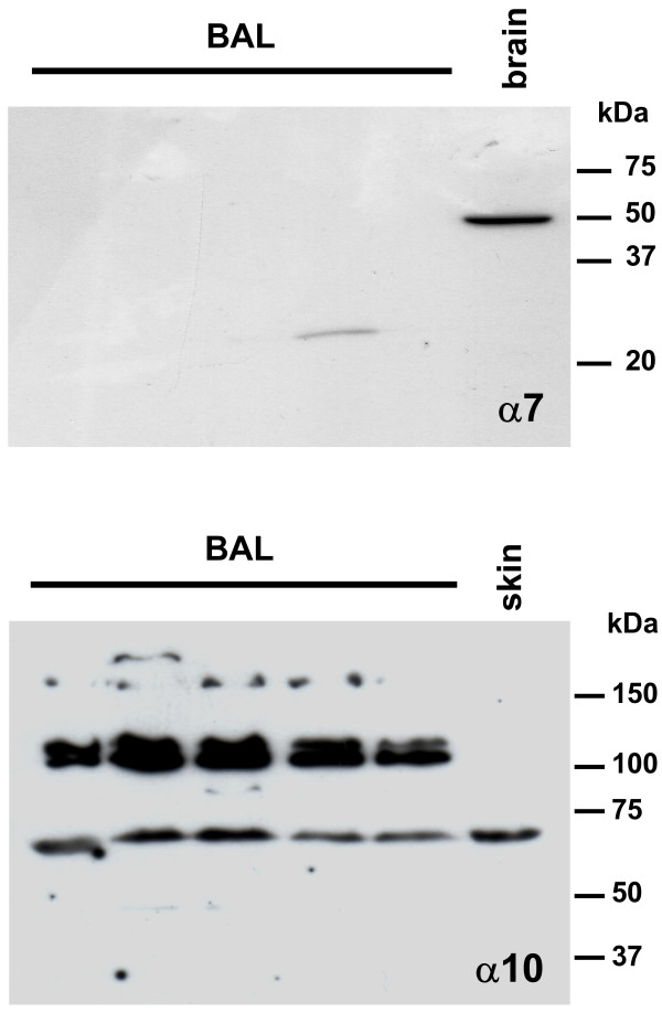 Immunoblots . No α7 subunit-immunolabeling is present in BAL samples, while the antibody mAb 306 recognizes a single 50 kDa protein band in protein extracts from rat brain. Affinity purified polyclonal antibodies to α10 nAChR label a protein band at 67 kDa in BAL cells and rat skin samples. In BAL cells, additional bands at 110-120 kDa are immunolabeled.