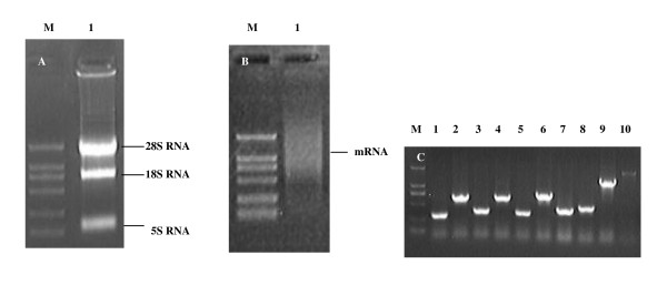 The results of display of the <t>cDNA</t> library from N2a cells on T7 phage . (A) Lane1:The result of extracted total RNA of N2a cells. The electrophoresis results show 28 S and 18 S bands were clear, indicating the total RNA extraction without degradation. M: DL2000 Marker. (B) Lane1:The result of purified <t>mRNA</t> of N2a cells. OD260/OD280 = 1.950. The data show that the purified mRNA could be used for cDNA synthesis. M: DL2000 Marker. (C) Lane1 to 10: The PCR identified result of randomly picked phage clones of the library. Amplification of inserts in randomly selected clones revealed that the library contained > 90% recombinants with average insert size of > 300 bp. M: DL2000 Marker.