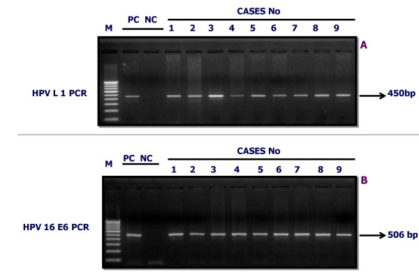 Detection of <t>HPV</t> infection by PCR in OSMF and OSCC cases . Gel figure A represent the ethidium bromide-staining in 2% agarose gel and showing presence of HPV infection in OSMF OSCC cases with an amplicon of L1 consensus (450 bp) and Gel figure B represent the amplicon of HPV 16 E6 (506 bp). PC is positive control <t>DNA,</t> NC is negative control DNA, Lanes 1 to 9 are DNA samples from OSMF and OSCC cases, M = 100 bp molecular weight marker.