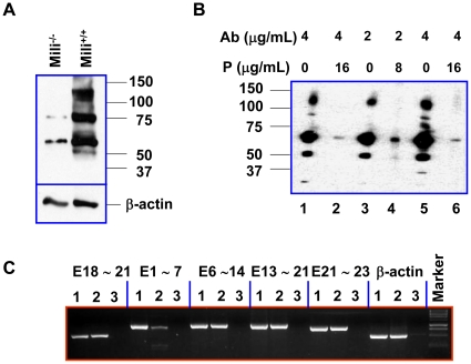 Identification and characterization of PL2L proteins of humans and mice. A B , Western blot analysis of Piwil2 and PL2L proteins expressed in mouse testis (A) and HeLa cells (B), using rabbit polyclonal antibody to Piwil2 peptide. A, Testicular cell lysates of mili −/− and mili +/+ mice. B, HeLa cell lysate: Lane 1 5: 4 µg/mL antibody without peptide; Lane 2 6: 4 µg/mL antibody with 16 µg/mL Peptide; Lane 3: 2 µg/mL antibody alone; Lane 4: 2 µg/mL antibody with 8 µg/mL Peptide. P: Piwil2 peptide; Ab: antibody to Piwil2 peptide. C , GEM RT-PCR analysis of testicular tissues from wild-type (Lane 1) and mili −/− mice (Lane 2): the primer pairs specific for E1-7, E6-14, E13-21 and E21-23 of Piwil2 were used for GEM RT-PCR analysis, and the primer pair specific for E18-21 was used as a positive control. Lane 3: no cDNA control.