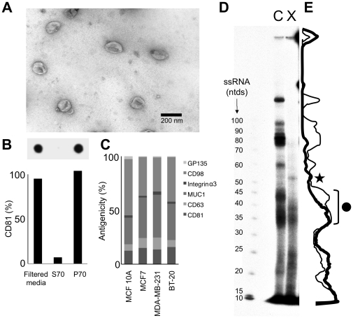 Differential Cellular Release and Retention of Small RNAs. Medium conditioned by MCF7 cells for 5 days was enriched for exosomes by a filtration and ultracentrifugation protocol producing a P70 preparation. A The P70 was subjected to negative-staining EM. B The abundance of tetraspanin CD81, an exosome-marker was assessed in the filtered conditioned medium, the P70 pellet obtained by ultracentrifugation, and the supernatant (S70) using slot-blot (inset, n = 2). C The surface antigens CD81, CD63 and Mucin-1 were detected in the P70 fraction of the mammary epithelial cells using slot-blot. The absolute amount of bound antibody was quantified using standard-curves of antibody dilutions, and expressed as a percent of total antigenicity for the P70 of each cell line. The data of two replicate experiments for the indicated cell lines are shown. D Radiolabeled small RNAs isolated from MCF7 cells (c) and the extracellular preparation P70 (x) were separated by PAGE on a 12% denaturing gel. Star : Extracellular enriched RNA; Circle : Some extracellular RNAs identified by sequencing (see text and Tables S1 and S2 ). E Quantitation of labeled RNA species of D. The thin line indicates abundance of cellular small RNAs, whereas the thick line indicates the abundance of the extracellular miRNAs.