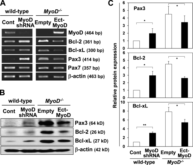 MyoD negatively regulates Pax3, Bcl-2, and Bcl-xL expression. (A) MyoD, Bcl-2, Bcl-xL, Pax3, and Pax7 gene expression were compared between wild-type myoblasts infected with a lentivirus vector expressing shRNA vector for MyoD and a control shRNA vector (Cont) or MyoD −/− myoblasts infected with a lentivirus vector expressing MyoD (Ect-MyoD) and a control empty vector by RT-PCR. (B) Bcl-2, Bcl-xL, and Pax3 protein expression were compared between wild-type myoblasts infected with a lentivirus vector expressing shRNA vector for MyoD and a control shRNA vector or MyoD −/− myoblasts infected with a lentivirus vector expressing MyoD and a control empty vector by Western blotting. (A and B) β-Actin was monitored as a loading control. (C) Relative Pax3, Bcl-2, and Bcl-xL protein expression levels normalized by β-actin expression were measured by Western blotting. *, P