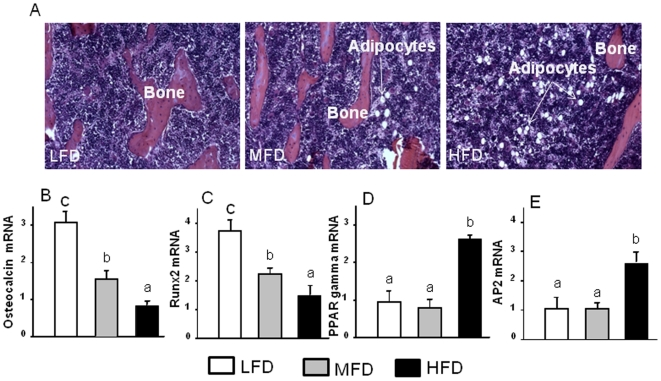 Increased adipogenesis in bone and bone marrow in HFD-induced obese animals. (A), Represented H E staining picture of increased bone marrow adiposity in tibial bone section from HFD-induced obese animals (10x). (B) and (C), osteocalcin and Runx2 gene expression measured using real-time RT-PCR. (D) and (E), PPARγ and aP2 gene expression measured using real time RT-PCR. Total RNA was isolated from femur of each animal after bone marrow aspiration for RT-PCR. LFD, low fat diet (control pelleted AIN-93G 14% fat diet); MFD, medium fat diet (25% fat diet); HFD, high fat TEN diet (45% fat diet). Data bars are expressed as mean ± SEM (n = 6/group). Means with different letters differ significantly from each other at p