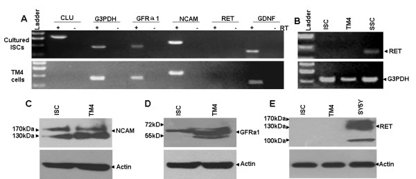 Expression of GDNF and its receptor subunits in cultured ISCs and TM4 cells . (A) RT-PCR results exhibited the expression of GDNF, GFRα1 and NCAM but not RET mRNAs in cultured ISCs and TM4 cells. G3PDH and the Sertoli cell-specific gene CLU were used as positive controls. (B) RET expression in SSCs but not cultured ISCs or TM4 cells was detected by RT-PCR. (C-E) Western blotting demonstrated the expression of NCAM (C) and GFRα1 (D) but not RET (E) proteins in cultured ISCs and TM4 cells. The SY5Y cell line was used as the positive control for the RET protein. The β-actin protein was used as a positive control for each sample.