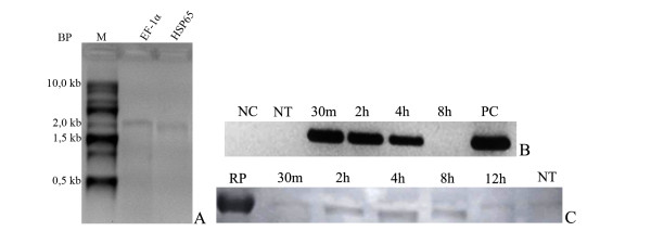 (A) - Electrophoretic profile of in vitro synthesized messenger RNAs . Lane M: 0.5-10 kb RNA Ladder (Invitrogen), lane 1: 1 μg of mRNA-Hsp65, 2: 1 μg of EF-1α mRNA. The electrophoresis was performed in 1.5% denaturing agarose gel stained with ethidium bromide. (BP-Base pair, M-Marker). ( B) - Detection of the integrity of the mRNA-Hsp65 by RT-PCR. After transfection of HEK 293 cells with the mRNA-Hsp65 cells were maintained in culture for different periods of time, as showed in the figure, in order to analyze the presence of mRNA-Hsp65. Electrophoresis was run in 1.5% agarose gel and stained with ethidium bromide (NC-Negative PCR control, NT-Not transfected, PC-Positive PCR control). ( C) - After contact mRNA-Hsp65 for different periods of time, the total cell lysate was subjected to polyacrylamide gel electrophoresis (12.5%) and the bands transferred to nitrocellulose membrane and incubated with anti-Hsp65 for 2 hours. The reaction was revealed with secondary antibody anti-mouse IgG in the presence of DAB. (RC-Recombinant protein Hsp65, NT-Not transfected)