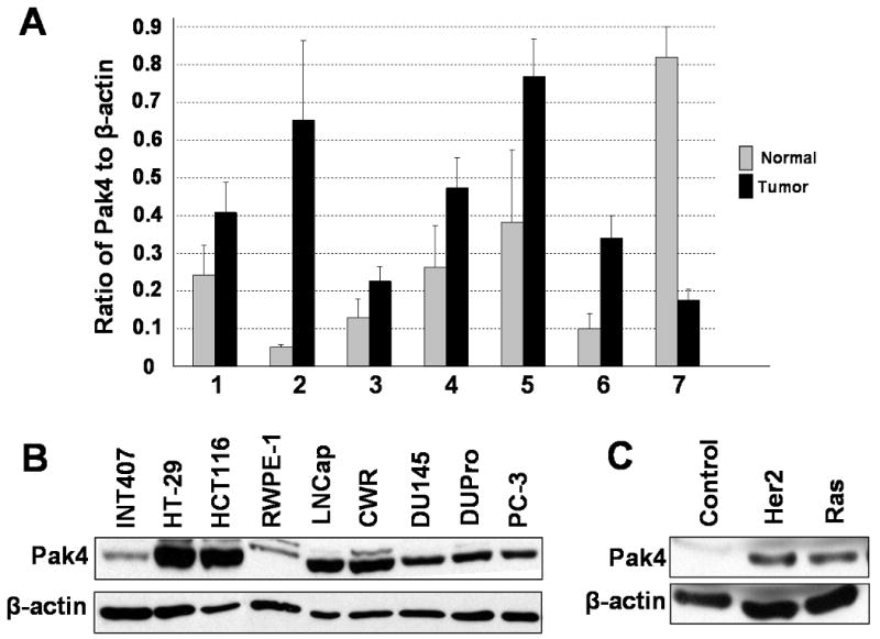 Pak4 is overexpressed in many different types of human tumors and cancer cell lines. A . Quantitative PCR analysis of Pak4 gene expression using cDNA from different types of human tumor tissues and normal tissue. Data are represented as the ratio normalized to β-actin gene expression. 1, Breast. 2, Endometrium. 3, Esophagus. 4, Ovary. 5, Prostate. 6, Urinary bladder. 7, Testis. B . Western blot analysis illustrates high levels of Pak4 expression in human cancer cell lines compared to normal cell lines. The following cell lines were analyzed: Colon cancer cell lines (HT29 and HCT116), prostate cancer cell lines (LNCap, CWR, DU145, DUPro, and PC-3), and normal small intestine and prostate cell lines (INT407 and RWPE-1). C . Pak4 is overexpressed in response to oncogene expression in iMMECs. In B and C, 40 μg of protein extract was used; β-actin served as a loading control.