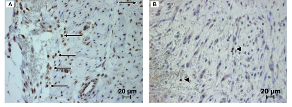 Image sections of immunohistochemically stained cranial tibial muscle cross sections . (A) Periimplant fibrous tissue of an MgCa0.8 screw six weeks post operatively (CD79α, 400×). Arrows represent CD79α positive B-lymphocytes. (B) Periimplant fibrous tissue of an S316L screw two weeks postoperatively (CD3, 400×). Triangles indicate CD3 positive T-lymphocytes.