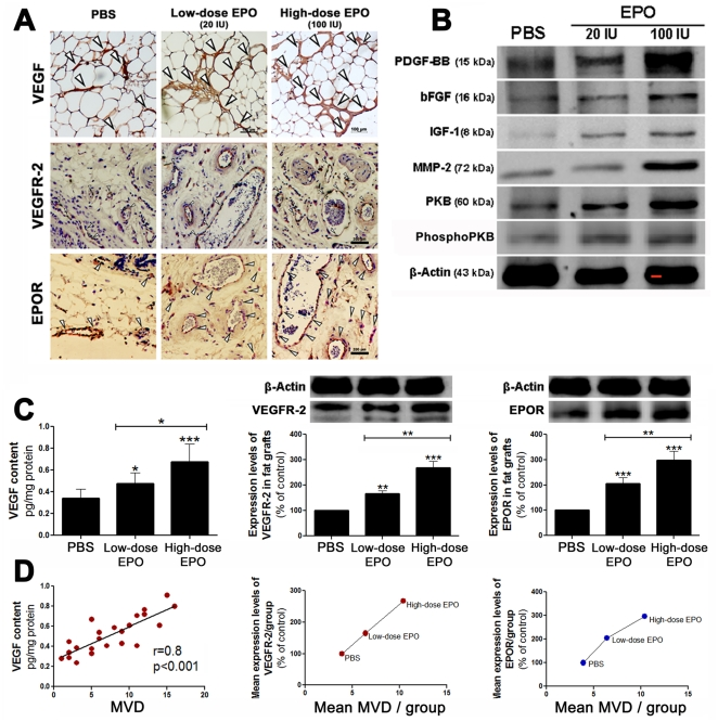Effect of EPO on the expression levels of angiogenic growth factors in the fat grafts. The fat grafts from the three different groups of mice were treated with either PBS (100 µl), 20 IU EPO/100 µl PBS (low-dose), or 100 IU EPO/100 µl PBS (high-dose) on the day of the fat injection, and the treatments were repeated every three days for 18 days. (A) Representative histological micrographs of PBS-, and low-dose- and high-dose-EPO treated fat grafts (left to right) presenting VEGF expression (upper panel), VEGFR-2 expression (middle panel), and EPOR expression (lower panel). (B) Representative western blots of the expression levels of the angiogenic factors in the PBS- and EPO-treated fat grafts at the end of the 15-week study period. bFGF: basic fibroblast growth factor; IGF-1: insulin-like growth factor-1; PDGF-BB: platelet-derived growth factor-BB; MMP-2: matrix metalloproteinase-2; PKB: protein kinase B; phosphoPKB: phosphorylated PKB. (C) Graphs representing the mean VEGF content (left), the mean VEGFR-2 expression (middle) and the mean EPOR expression (right) ± SD in the fat grafts in each treatment group. (D) The correlation between VEGF and MVD (left), and between mean VEGFR-2 (middle) and EPOR (right) expression and mean MVD in each group. * P