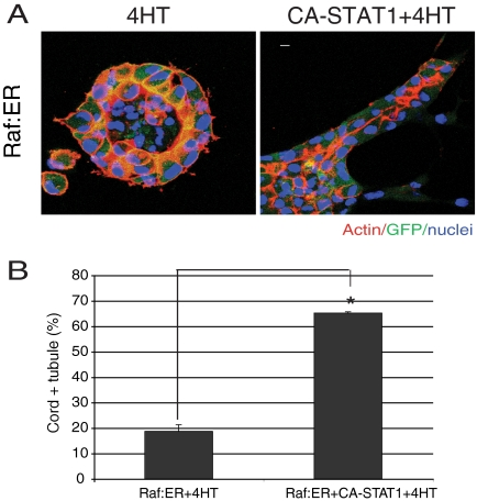 Overexpression of constitutively active form of STAT1 restores redifferentiation of Raf:ER cells in the presence of 4HT. (A) Raf:ER cysts (left) and Raf:ER cysts overexpressing CA-STAT1 were treated with 4HT for 72 h. CA-STAT1 overexpression promotes redifferentiation in activated Raf:ER cysts. Bar, 10 μm. (B) Quantification of cords plus tubules in the presence of 4HT. One hundred GFP-positive structures per sample were counted (mean ± SEM, n = 3). *p
