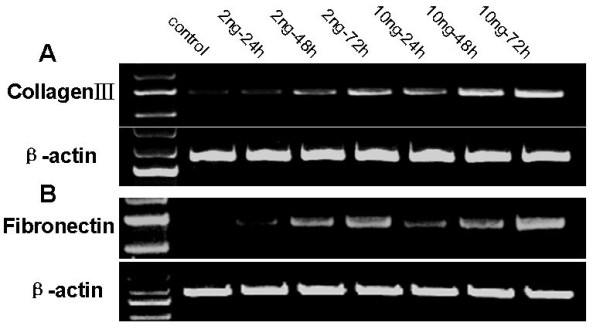 Effects of TGF-β1 on expression of collagen III and fibronectin mRNA in HPMCs . Serum-starved HPMCs were incubated with TGF-β1 (2 or 10 ng/ml) for up to 72 h and RNA was then isolated and subjected to semi-quantitative RT-PCR analysis of collagen III (A) and fibronectin (B). Expression of β-actin was used as a loading control.