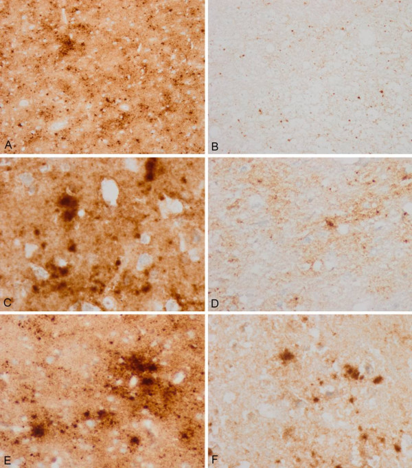3F4 immunohistochemistry without and with proteinase K pre-treatment in the same regions of consecutive serial sections . Parallel (A, B; C, D; and E, F) cortical regions pre-treated with proteinase K (B, D, F) show marked reduction of PrP immunoreactivity when compared with serial sections without proteinase K pre-treatment (A, C, E). Different regions with variable amounts of total PrP were selected in order to have a comprehensive idea of PrP sensitivity.
