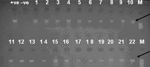 PCR products of isolates numbered 1 to 22 . Agarose gel electrophoresis of 933-bp PCR amplification products from chromosomal DNA from staphylococcal species using primers GF-1 and GR-2, M: Ladder marker, black arrow refers to the correct size product of the gap gene corresponding to 933 base pairs. +ve: Staphylococcus aureus ATCC 6538,-ve: Pseudomonas aeruginosa ATCC 9027. Samples 1-22 except 3 4: Staphylococcus hominis , 3: Staphylococcus aureus and 4: Staphylococcus sciuri .
