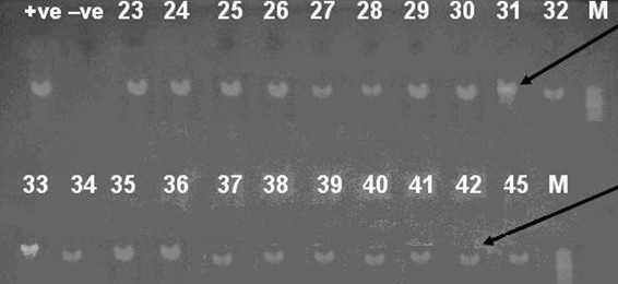 <t>PCR</t> products of isolates numbered 23 to 45 . Agarose gel electrophoresis of 933-bp PCR amplification products from chromosomal <t>DNA</t> from staphylococcal species using primers GF-1 and GR-2, M, +ve, -ve and black arrow are the same as in figure 1. Samples 23, 45: Staphylococcus hominis , 24-29: Staphylococcus epidermidis , 30, 31: Staphylococcus aureus , 32, 33: Staphylococcus lugdunensis , 34, 35: Staphylococcus warneri , 36, 37: Staphylococcus xlyosus and 38-42: Staphylococcus haemolyticus .