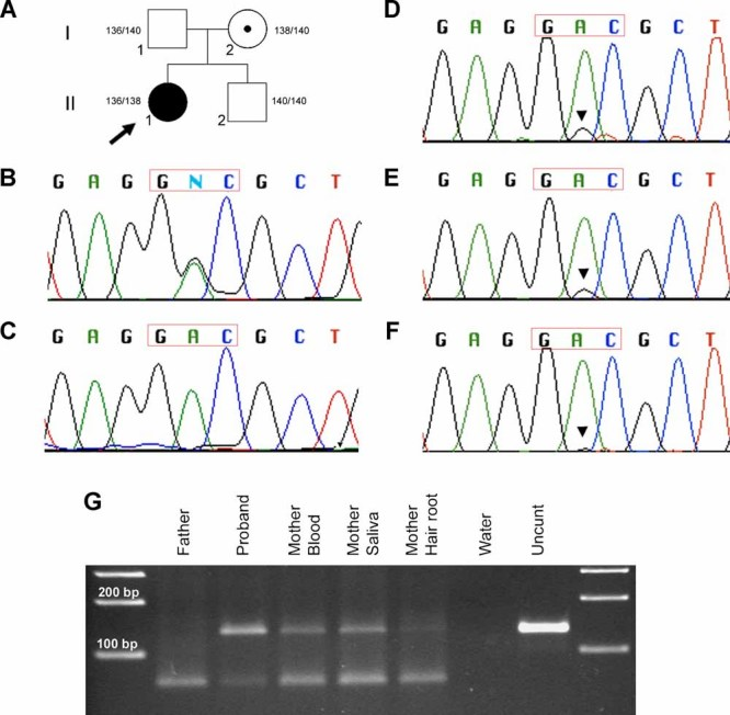 FGFR2 exon IIIc sequence and restriction enzyme digestion A : Pedigree indicating the segregation of the microsatellite D10S1483 located 6.7 kb away from the site of the FGFR2 mutation in the proposita (II-1), showing that the two sibs have inherited opposite maternal FGFR2 alleles. B–F: DNA sequencing chromatograms around the mutation site (p.Asp336 codon corresponding to the GAC boxed sequence) in FGFR2 exon IIIc ( B , C : reverse complementary sequence of the minus strand; D – F : forward sequence of the plus strand); the proposita's blood DNA (B) shows a heterozygous c.1007A > G mutation encoding a p.Asp336Gly substitution; (C) the same change is absent from the father's blood DNA. D–F: Chromatograms from the mother's blood (D), saliva (E) and hair roots (F) genomic DNA, revealing a variable amount of the c.1007A > G mutation in these tissues (arrowheads). G : Hga I restriction digest of a 132 bp PCR product for the different genomic DNA samples (as indicated), shows that the normal allele (c.1007A), is cut into two fragments (65 and 67 bp), while the c.1007A > G mutation abolishes the Hga I restriction site (GACGCN 5 ). Comparison of the ratio of mutant (upper undigested fragment) to normal (lower fragments) alleles in the maternal samples to that of the heterozygous proposita, shows that the relative amount of undigested fragment is reduced in the mother's blood and saliva samples and is barely visible in the hair root sample (right and left lanes are 100 bp ladders). [Color figure can be viewed in the online issue, which is available at http://www.interscience.wiley.com .]